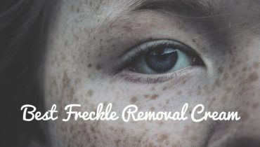 best freckle removal cream reviews