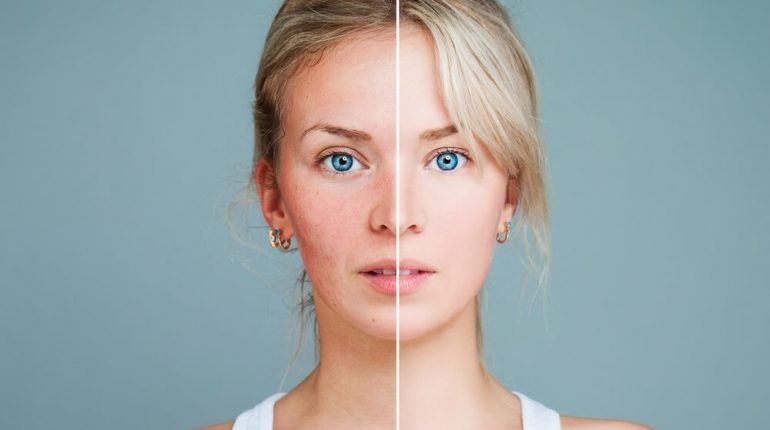 how long does acne scars take to go away