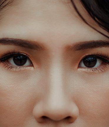 dry skin in between eyebrows
